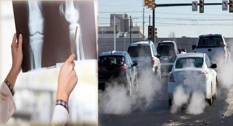 التلوث يتسبب في هشاشة العظام